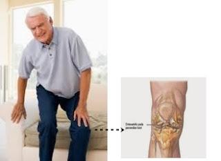 Tips Mengobati Pengapuran Tulang Sendi Lutut