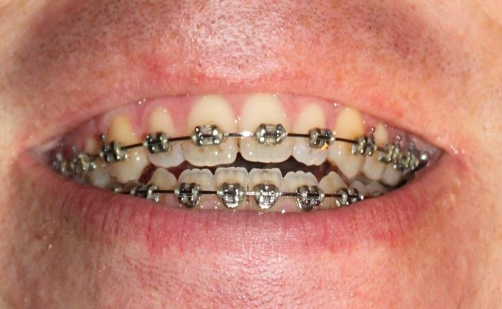 tandställning utan gummiband