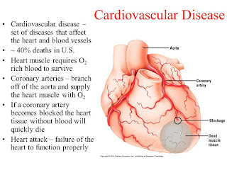 How to Prevent and Treat Cardiovascular Disease