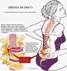 inyeccion para hernia discal lumbar