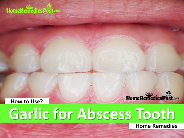 Garlic for Abscess Tooth, Garlic for tooth abscess, is garlic good for abscess tooth, How to Use Garlic for Abscess Tooth, How To Get Rid Of Abscess Tooth, Home Remedies For Abscess, How To Treat Abscess Tooth, How To Cure Abscess Tooth,