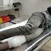 एनकाउंटर में बदमाश गिरफ्तार, दरोगा घायल