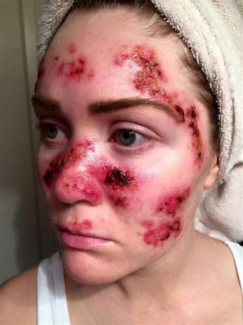 تحذير ! هذا  الشيء يسبب سرطان الجلد تستعمله الكثير من النساء.