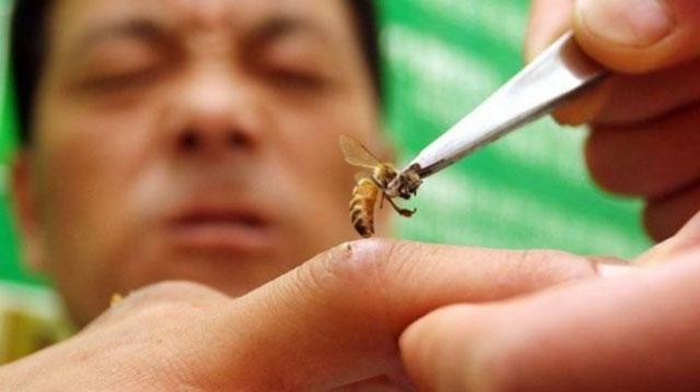 Terapi Sengatan Lebah