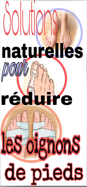Solutions naturelles pour réduire les oignons de pieds