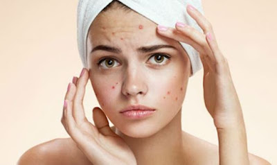 suffered-acne-you-may-show-fewer-signs-of-ageing