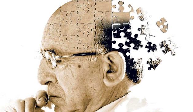 6 Misteri Besar Penyakit Alzheimer