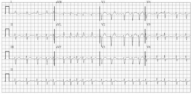 EKG of a fib