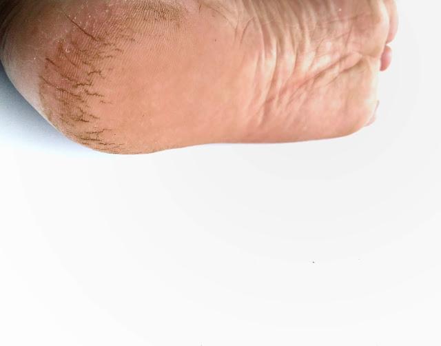 cara mengatasi kaki pecah-pecah