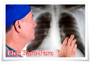 Cara mengobati flek paru paru menghilangkan flek paru paru
