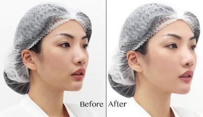 Harga Paket Perawatan Terbaru Klinik Kecantikan JAC Jakarta Aesthetic Clinic