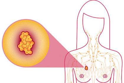 Causes of Breast Cancer in Most Females