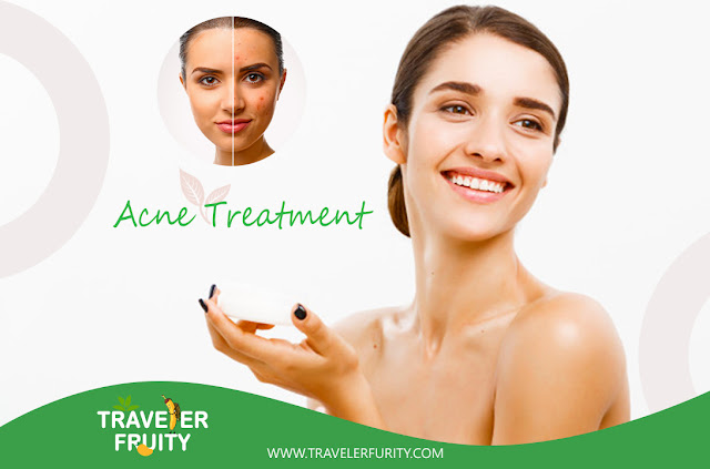 Tips for acne treatment at Home