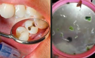 7 Cara Mengeluarkan Ulat Gigi Sendiri Secara Alami