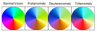 Anomali Trikomat (Anomalous trichromacy)
