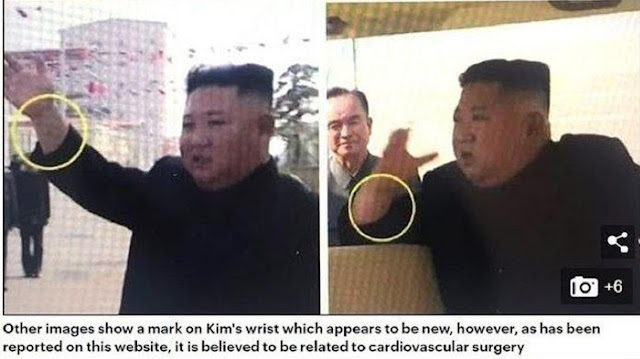 Muncul Teori 'Liar' Soal Kim Jong Un: Punya 2 Tubuh, yang Tampak Kemarin adalah 'Pengganti'