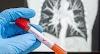 Salud Dominicana donará 500 pruebas rápidas de COVID-19 y miles de mascarillas y guantes