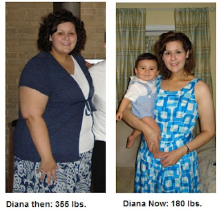 Image: Gastric Bypass Surgery Reverses Patient's Lifetime Infertility