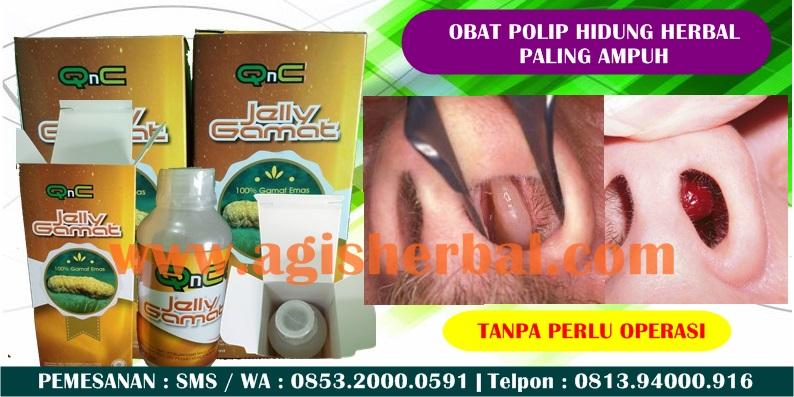 Obat Semprot Polip Hidung
