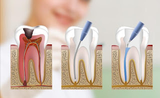 Dental hypersensitivity