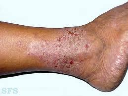 Untuk mengobati penyakit eksim kering dan basah