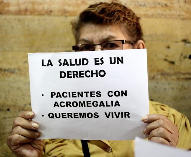 """La terrible desatención del Gobierno hacia venezolanos con acromegalia: """"Nos puede explotar el corazón"""""""