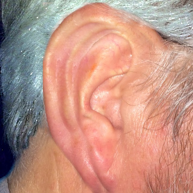Ear infection,Earn pain,Causes and Treatment