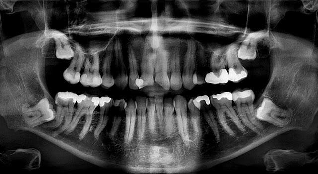 PDF: A retrospective cohort study on reasons to retain third molars