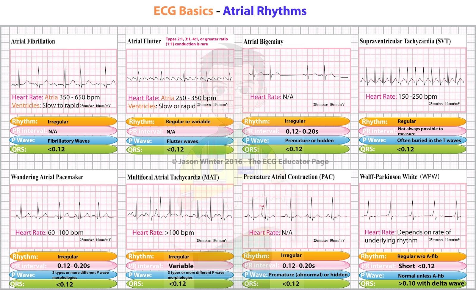 Ecg Educator Blog Atrial Rhythms
