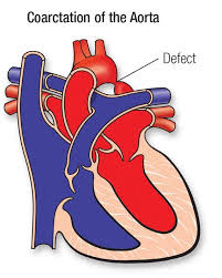 Coarctation of aorta cause