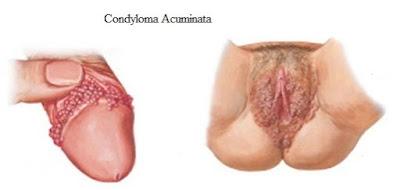 Condyloma Acuminata Yang Tumbuh Di Kelamin Pria Dan Wanita