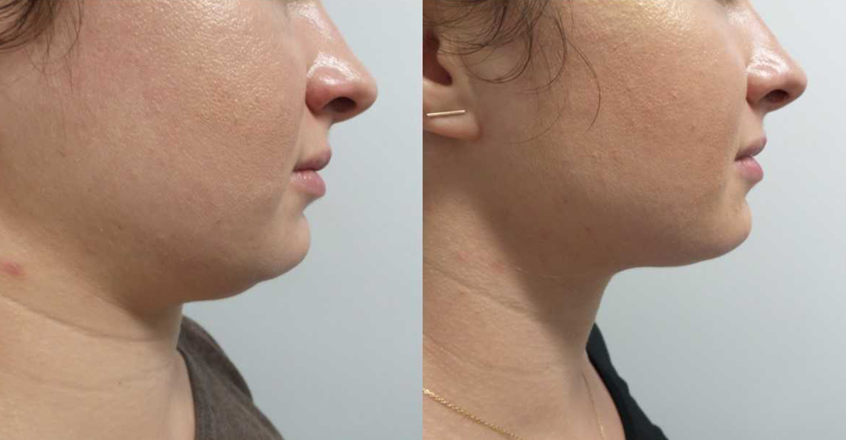How Kybella Can Help You Get Rid of Your Double Chin?