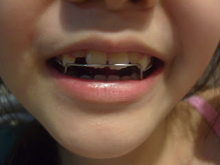 Stories From My Garden: Gina's New Orthodontic Retainers