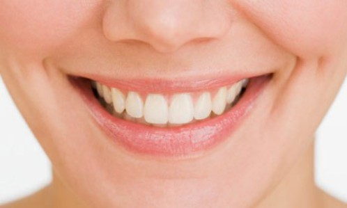 Niềng răng bằng mắc cài đem lại hàm răng đều đẹp