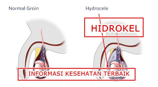 Bahaya, Anjuran dan Pantangan Penyakit Hidrokel