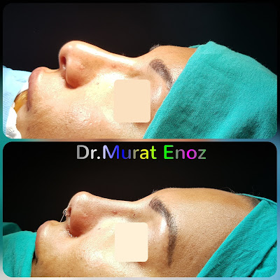 Rhinoplasty In Istanbul,Ethnic revision nose job,Ethnic revision rhinoplasty in Istanbul,