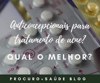 Anticoncepcionais para tratamento de acne? Qual o melhor?