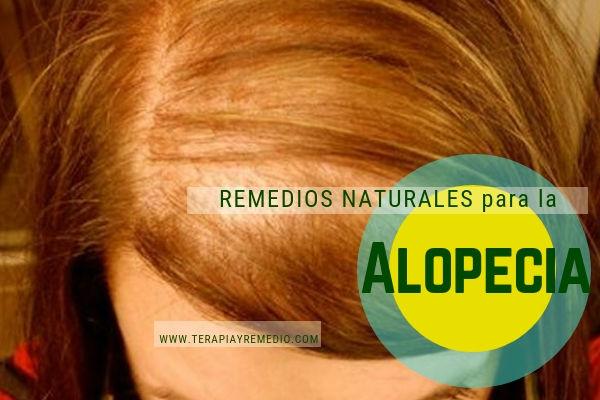 Remedios naturales para la alopecia, tratamiento natural para la caída del cabello