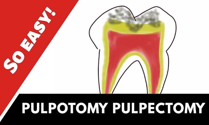 PULP TREATMENT: Pulpotomy and Pulpectomy - Dr. Hina Malik
