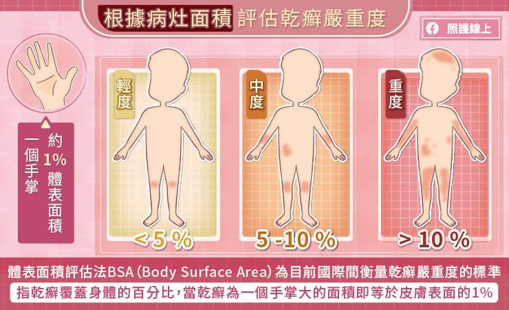 根據病灶面積評估乾癬嚴重度