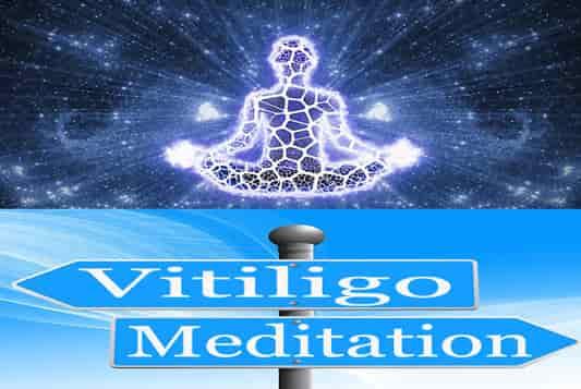 meditation in vitiligo