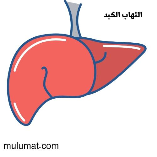 أعراض التهاب الكبد والتدابير التي يجب اتخاذها عند الإصابة به