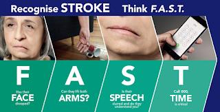 Obat Herbal Khusus Stroke, Mengobati Penyakit Stroke Secara Alami, Pengobatan Stroke Dengan Fisioterapi, Obat Alami Untuk Mengobati Penyakit Stroke, Obat Nyeri Stroke, Pengertian Penyakit Stroke Pdf, Untuk Mengobati Stroke, Apakah Penyakit Stroke, Obat Tradisional Stroke Sebelah Kiri, Distribusi Penyakit Stroke Di Indonesia, Obat Herbal Yang Ampuh Untuk Stroke, Obat Gejala Stroke Ringan, Obat Herbal Penyakit Stroke Berat, Tahap Penyakit Stroke, Obat Stroke Ringan Sebelah Kanan, Obat Stroke Ala Hembing, Obat Alami Mengobati Gejala Stroke, Obat Stroke Dokter, Tips Penyembuhan Penyakit Stroke Ringan, Pengobatan Pasca Stroke, Obat Mujarab Untuk Penyakit Stroke, Cara Membuat Obat Herbal Stroke Ringan, Obat Stroke Dari K-Link, Obat Tradisional Stroke Dan Darah Tinggi, Bisakah Penyakit Stroke Sembuh