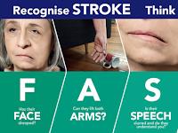 Obat Alami Mengobati Penyakit Stroke