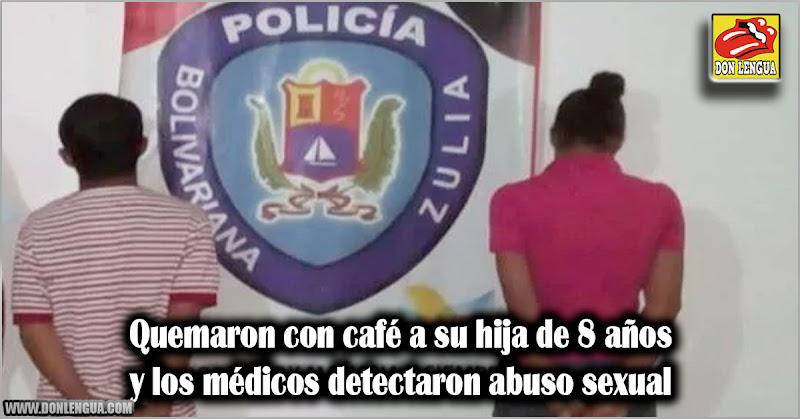 Quemaron con café a su hija de 8 años y médicos detectaron abuso sexual