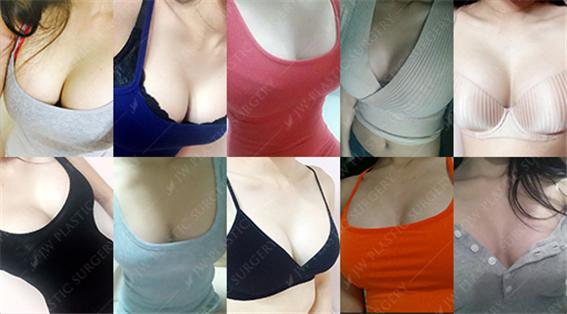Top Plastic Surgeon Breast Augmentation