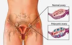 Obat Lecet Lecet Pada Bibir Vagina