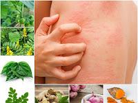 Membuat Ramuan Herbal untuk Obati Biduran dari Prof. H.M. Hembing Wijayakusuma