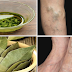 Perfect Herbal Treatments To Get Rid Varicose Veins and Joint Pains Naturally