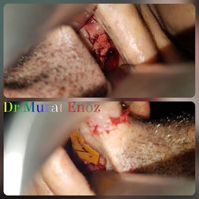 Nasal Septum Perforation Closure - Treatment in Turkey Istanbul